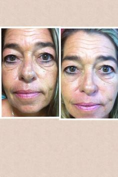 After one facial wrap!