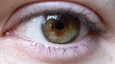 Regular Pot Use Causes Eyesight Damage, Says Study   #cannabis #weed #marijuana #flower #rosin #shatter  #nugrun #strains #sativa #indica #concentrates #CBD  #dab #dablife #hash #THC #wax #joints #kush #shatter #shatterlabels