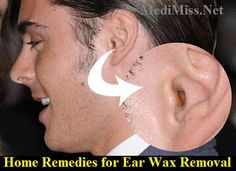 Home Remes For Ear Wax Removal Medimiss