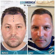 COSMEDICA Dr. Acar (@cosmedicaclinic) • Instagram-foto's en -video's Hair Transplant Results, Instagram