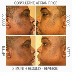Rodan + Fields Reverse Regimen for the appearance of dark spots, dullness and overall skin tone! Ask me how to get yours today! DKingsley2017@gmai.com