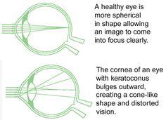 The Global Keratoconus Foundation website. Good info. http://kcglobal.org/content/blogsection/2/52/