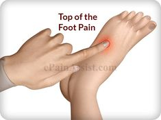 Do you have pain on the top of your foot? Here is a great read about what you can do. https://www.epainassist.com/joint-pain/foot-pain/top-of-the-foot-pain #Feet4Life #footpain