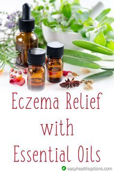 Best Ointment For Eczema. Itchy skin and eczema medication. On the list of various chronic skin disorders, eczema is among the most frequent. Essential Oils For Eczema, Young Living Essential Oils, Essential Oil Blends, Foot Remedies, Eczema Remedies, Natural Remedies, Herbal Remedies, Health Remedies, Dental