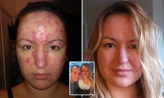 'My adult acne caused me left me suicidal'