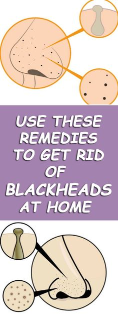 Home Remedies For Blackheads #Blackheads