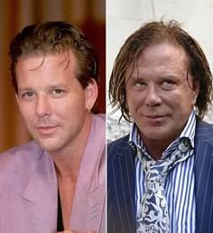 Celebs Then and Now - Mickey Rourke