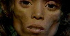 osCurve Brasil : Veja como está hoje Meirinha, a menina com desnutr...