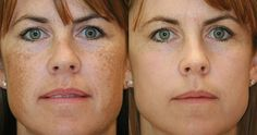 Brown spots usually appear on people who are fifty years old and above and people who have white complexion. 12 natural ways to remove brown spots on face Brown Spots On Face, Dark Spots On Skin, Skin Spots, Dark Skin, Dark Patches On Skin, Remover Manchas, Skin Burns, How To Exfoliate Skin, Whiten Skin