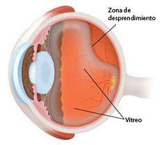 El humor vítreo normalmente se reduce a medida que envejecemos. En general, esto no causa daño a la retina. Sin embargo, una inflamación o una miopía pueden hacer que el vítreo se separe, resultando en un desprendimiento de la retina.