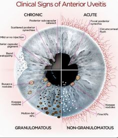 Clinical Signs of Anterior Uveitis Opthalmic Technician, Optometry School, Eye Anatomy, Heart Anatomy, Medicine Notes, Eye Facts, Healthy Eyes, Eyes Problems, Eye Doctor