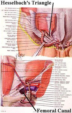Direct Inguinal Hernias   General Surgery