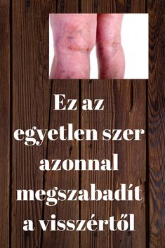 Ez az egyetlen szer azonnal megszabadít a visszértől - Szupertanácsok Healthy Beauty, Healthy Life, Herbal Remedies, Natural Remedies, Type 1 Diabetes, Herbalism, Health Fitness, Healing, Medical