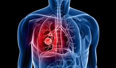 Mesothelioma Cancer: Mesothelioma cancer affecting mesothelial cells that cover most internal organs. There are two main types of mesothelioma; pleura and peritoneum. Pleural Mesothelioma: This is … Acute Bronchitis, Asthma, Bronchitis Remedies, Liver Cancer, Prostate Cancer, Cancer Cells, Breast Cancer, Health
