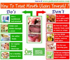 How to Treat Mouth Ulcers Yourself ? www.psdentalcentre.com