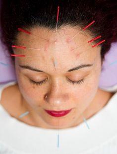 Facial Rejuvenation (Cosmetic) Acupuncture  Enerqikliniken  www.acupunctura.se