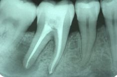 X-ray of a tooth that has had a root canal performed and is now failed so important to get crowns done when you have a tooth with a root canal