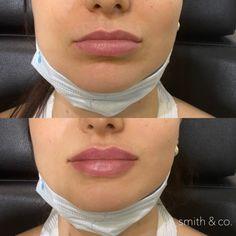 Danielle Smith, Lip Injections, Lip Fillers, Facial, Miami Beach, Make Up, Surgery, Beauty, Beautiful