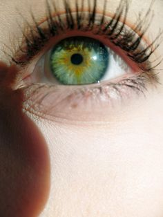 Central heterochromia...So. I have this. Because it's awesome. And I'm awesome....