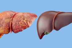 The liver is one of the most important organs in our bodies! Here are 5 of the best natural liver supplements for improved health. Natural Cleanse, Natural Detox, Natural Cures, Juice Cleanse Recipes, Detox Recipes, Liver Detox Symptoms, Best Way To Detox, Cleanse Your Liver, Cleanse Diet