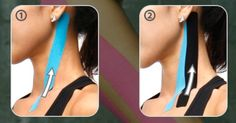 -Lateral Neck Pain 1. Turn the neck to the opposite side.  Anchor a full strip at the front side of the clavicle and run the tape to the area behind the earlobe. 2. Apply another strip next to the first strip. www.mxmtape.com http://whymattress.com/neck-pain-relief-products