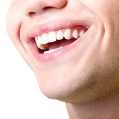Laser Gum Treatment - Barrington Dental Wellness Center