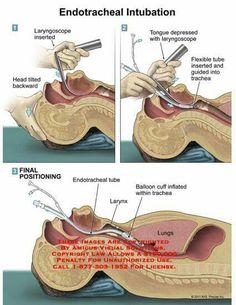 ET intubation
