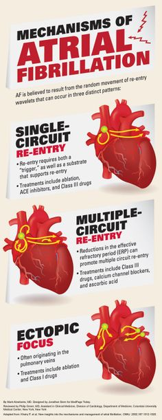 Atrial fibrillation or flutter is a common type of abnormal heartbeat in which the heart rhythm is fast and irregular.