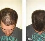 best-hair-regrowth-products-before-and-after