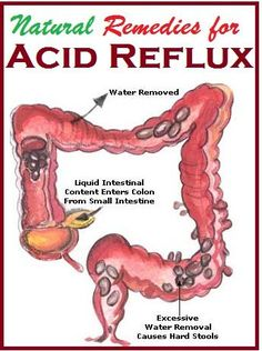 Different Treatments For Acid Reflux And Heartburn * Read more info by clicking the link on the image.
