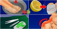 Os 7 Passos Para Tratar a Unha Encravada em Casa | Dicas de Saúde