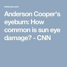 Anderson Cooper's eyeburn: How common is sun eye damage? - CNN