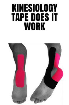 Kinesiology tape does it work? Have you seen kt tape on a someone at a sporting event? KT Tape is a special tape that is used as support for an injury, and also to relieve pain from an injury. Running Injuries, Running Socks, Running Gear, Heel Pain, Foot Pain, Ankle Taping, K Tape, Ankle Surgery, Kinesiology Taping