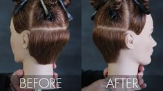 remove-weight-behind-ear_before-after