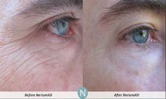 NeriumAD the 90 Day challenge look at how the fine lines have diminished