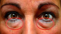 Muchos sabemos, que la mirada puede decir mucho acerca de cómo estamos, entonces, cuando nuestros ojos tienen ojeras y bolsas debajo, nos hacen lucir más cansados. Anuncios Aunque hay muchos tratamientos que ayudan a quitar esas ojeras de tus ojos, estos suelen ser costosos. Por suerte, hoy te mostramos algunos tratamientos completamente naturales, que además …