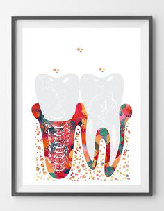 Dental Molar Implant watercolor print anatomy art poster medical art molar tooth and dental implant print tooth art wall decor illustration [800] This is a fine art watercolor print of my original handmade watercolor, digitally reworked. ♥ MATERIALS: High quality fine art prints