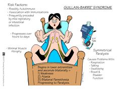 Nursing Mnemonics and Tips: Guillain-Barre Syndrome