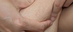 If you're troubled by unsightly stretch marks, then laser stretch mark removal may be the answer. Learn about this technique for removing stretch marks: http://wilmingtonfavs.org/laser-stretch-mark-removal/