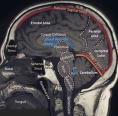 """resuscitationist: """"The brain is made of three main parts: the forebrain, midbrain, and hindbrain. The forebrain consists of the cerebrum, thalamus, and hypothalamus (part of the limbic system). The midbrain consists of the tectum and tegmentum. Brain Anatomy, Human Anatomy And Physiology, Medical Anatomy, Skull Anatomy, Radiology Student, Radiology Imaging, Medical Imaging, Radiology Schools, Student Memes"""