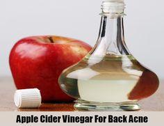 Apple Cider Vinegar For Back Acne