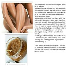 how to get rid of hair bumps on legs