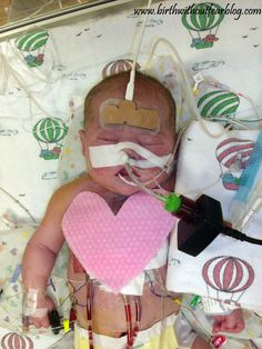 Ava's Story {TGA: Transposition of the Great Arteries; Open Heart Surgery at 3 Days Old} Psych Nurse, Chd Awareness, Open Heart Surgery, Congenital Heart Defect, Join Hands, Hallmark Holidays, Heart Conditions, Wound Care, Preemies