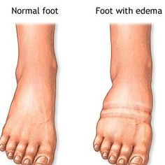 Home Remedy for Edema. I need to try some of these. I hate when I swell up