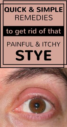 Quick And Simple Remedies To Get Rid Of That Painful And Itchy Stye