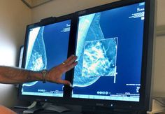 Study sparks debate on value of treatment for early stage breast cancer.