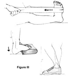 Plantar Fasciitis (heel pain).  Exercises to do.
