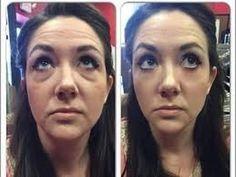 BOTOX EM CREME - O incrível efeito botox do argireline parte 1