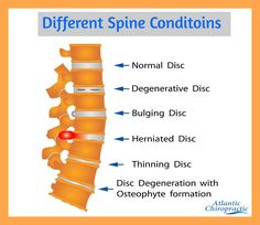 Degenerative disc disease can cause back pain or neck pain. Get quality spine expert-written information on causes symptoms and treatments. Lower Back Ache, Neck And Back Pain, Human Spine, Degenerative Disc Disease, Spine Health, Body Joints, Shoulder Muscles, Self Massage, Chiropractic Care