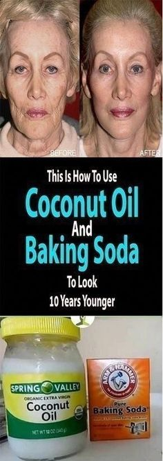 Coconut Oil and Baking Soda Face Mask to Look 10 Years Younger Natural Treatments, Skin Treatments, Natural Remedies, Health And Wellness, Health And Beauty, Health Care, Beauty Skin, Baking Soda Face, Baking With Coconut Oil